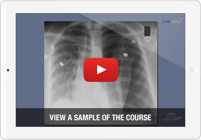 Pulmonology Explained Clearly Video